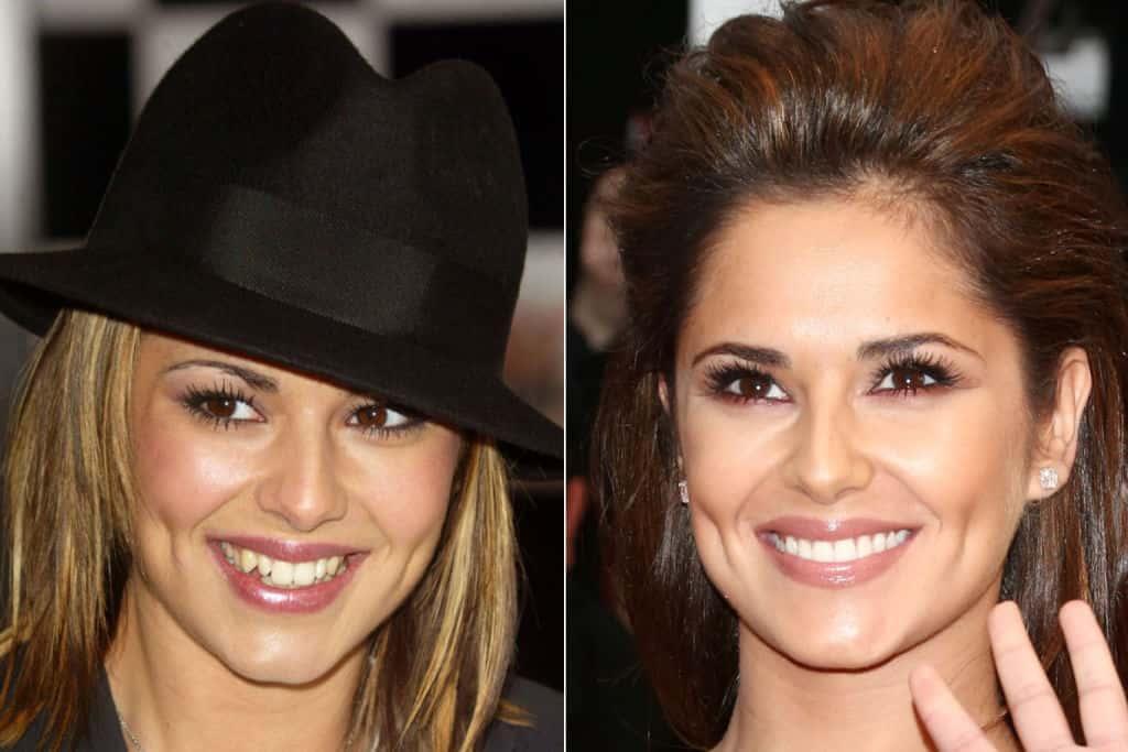 Cheryl Cole cosmetic dentistry