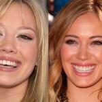 Hilary Duff cosmetic dentistry