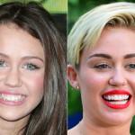 Miley Cyrus cosmetic dentistry