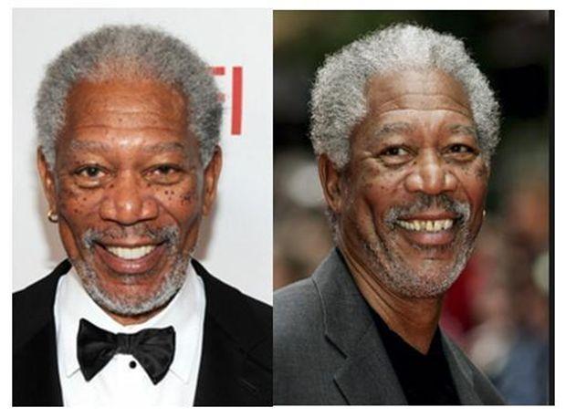 Morgan Freeman cosmetic dentistry