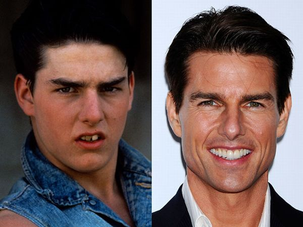 Tom Cruis cosmetic dentistry