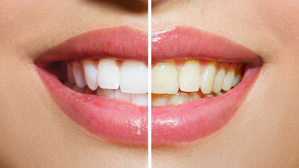Use a whitening toothpaste periodically
